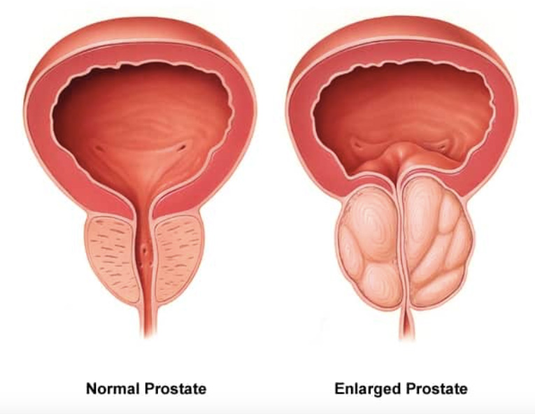 BPH Prostate enlargement