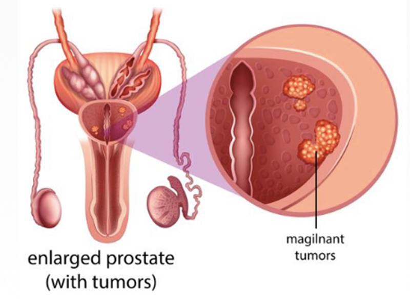 Prostate Cancer - Enlarged prostate with tumours